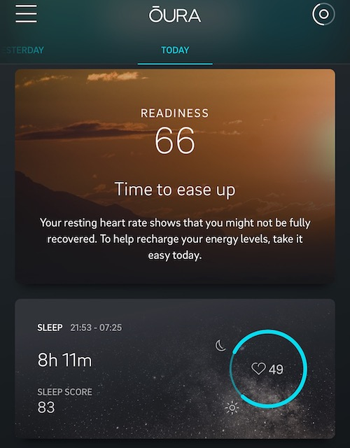 Oura Ring Review